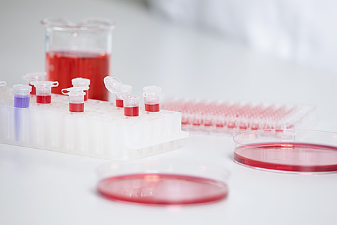 Germany, Bavaria, Munich, Test tubes and petri dishes for medical research in laboratory - RBF000810