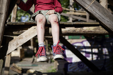 Germany, North Rhine Westphalia, Cologne, Boy injured in playground - FMKYF000420