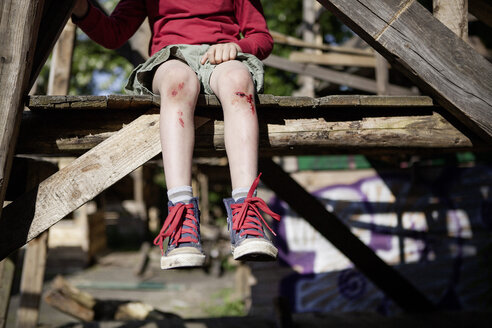 Germany, North Rhine Westphalia, Cologne, Boy injured in playground - FMKYF000420