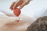 Traditional Chinese Medicine, TCM, female therapist with cupping glass during cupping therapy - MJF000367