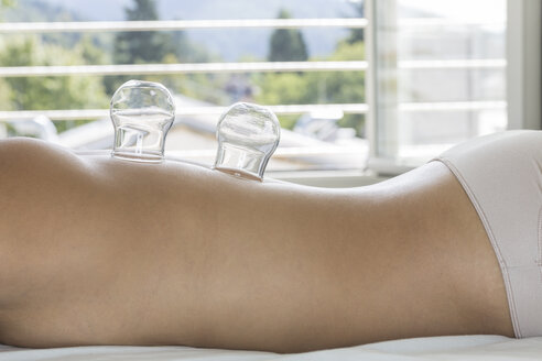 Germany, Freiburg, patient with cupping glasses during treatment - DR000236