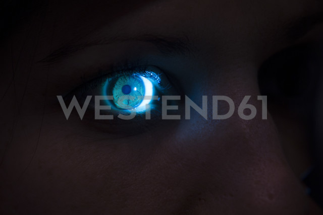 Eye of a woman being examined - ERLF000142