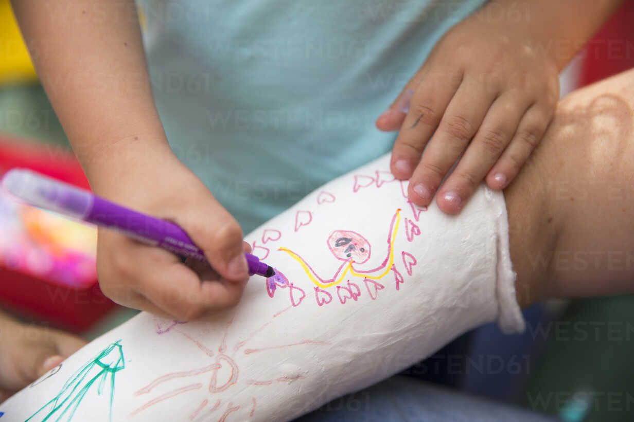 Little girls painting her mother's plaster arm - ERLF000181 - Enrique Ramos/Westend61