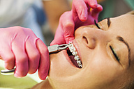 Orthodontist adjusting braces - ZEDF000227