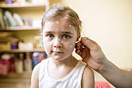 Portrait of girl having chickenpox - HAPF01421
