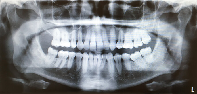 X-ray of a set of teeth - SEEF00038