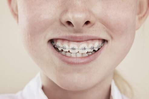 A smiling girl with braces on her teeth, close-up of mouth - FSIF00697
