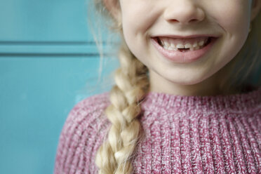 Close-up of girl showing missing teeth - CAVF45922