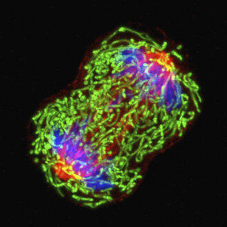 Microscopic image breast cancer cell dividing - CUF06158