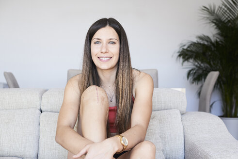 Portrait of smiling sporty young woman with knee full of scars - IGGF00974