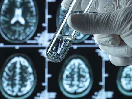 Pharmaceutical research into brain disorders including dementia and alzheimer's - ABRF00365