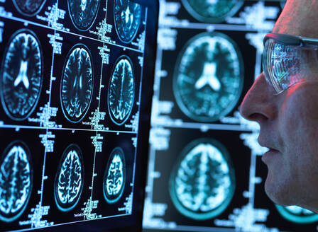 Doctor viewing brain scans for possible disease or damage in clinic - ISF21605