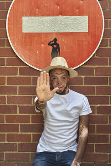 Portrait of young man with vitiligo wearing a hat doing a stop sign with his hand on a forbidden sign - VEGF01331