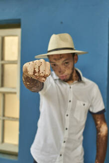 Portrait of young man with vitiligo wearing a hat - VEGF01334