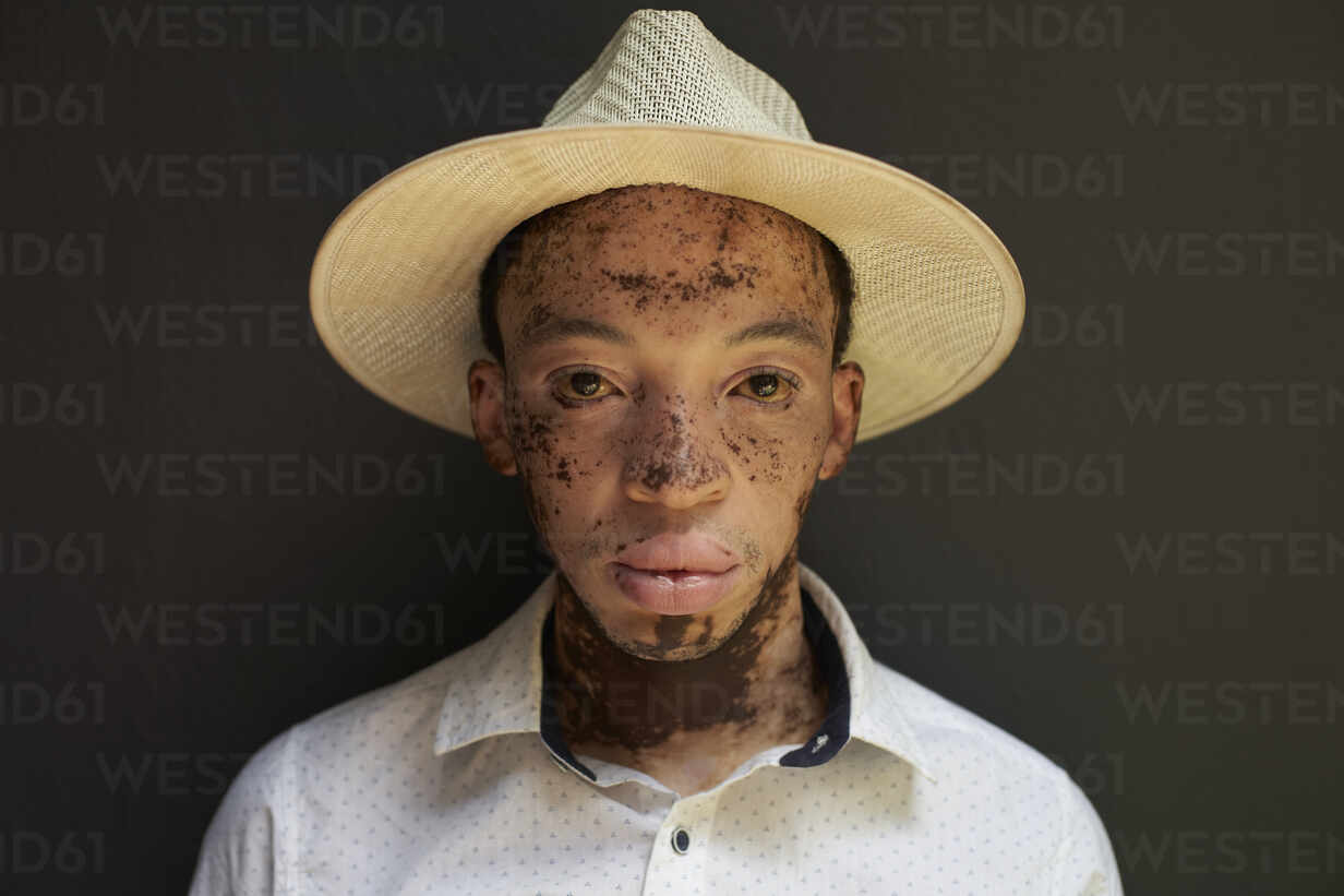 Portrait of young man with vitiligo wearing a hat - VEGF01343 - Veam/Westend61