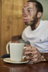 Young man with vitiligo sitting in a cafeteria and holding a coffee mug - VEGF01370