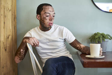 Young man with vitiligo having a cup of coffee in a cafeteria - VEGF01373