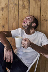 Young man with vitiligo having a cup of coffee and laughing in a cafeteria - VEGF01376