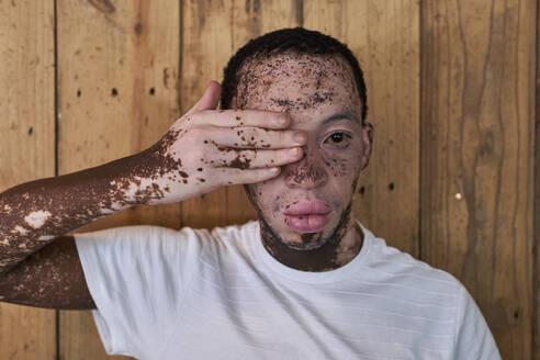 Portrait of a man with vitiligo covering his eye with a hand - VEGF01379