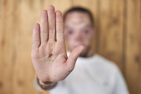 Close-up of the hand of a man with vitiligo - VEGF01382