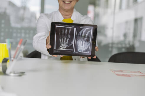 Doctor sitting at desk showing  x-ray image of hand on digital tablet - MFF05500