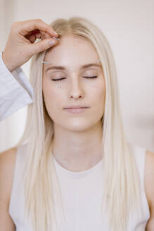 Acupuncture, young woman with acupuncture needle during treatment in the face - DAWF01680