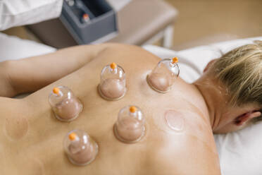 Cupping therapy, treatment at back - DAWF01701